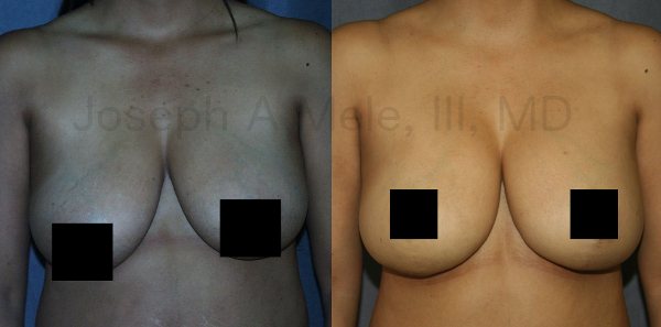 The Inverted-T breast lift gives the maximum lift and improvement, and have the longest scars too.