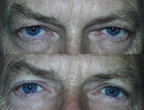 The Male Eyelid Lift (Male Blepharoplasty) above was performed to improve sight. Upper and lateral (outer) gaze was blocked by overhanging skin. The Blepharoplasty lifted the eyelids without distorting the eyebrows. Bags beneath the eyes were also reduced. Comparing the upper before and lower after pictures, he looks less angry and tired and more friendly and rested.