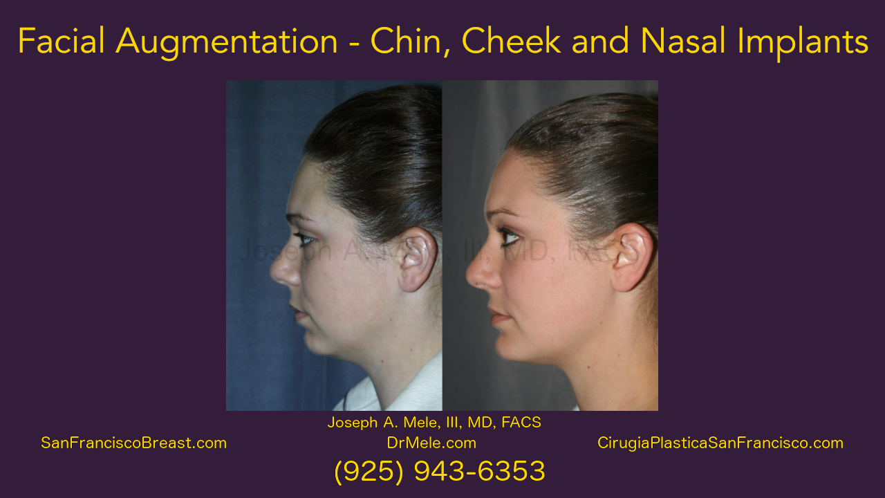 Facial Augmentation Video Presentation - chin, cheek and nasal implants before and after pictures