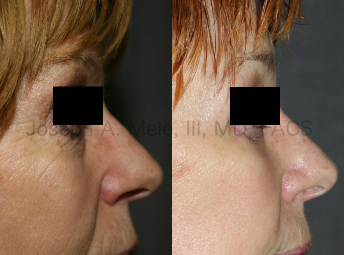 Cheek implant videos presentation with cheek augmentation before and after pictures.