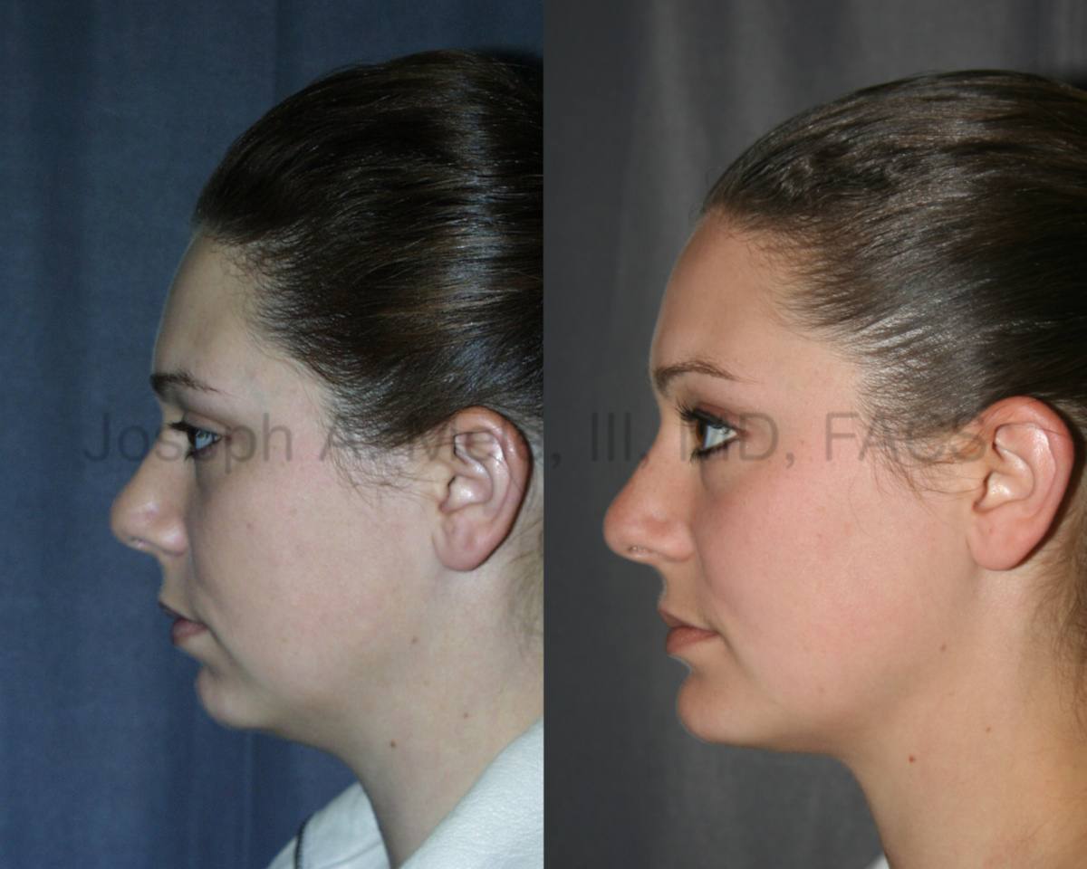Chin implant videos presentation with chin augmentation before and after pictures.