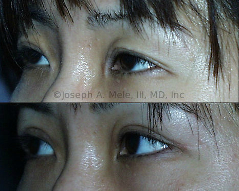 Asian Eyelid Surgery can include refining an ill-defined eyelid crease in addition to removing upper eyelid skin redundancy and lower eyelid bags. The double eyelid before and after pictures above are of one of my patients, and show the improved, yet natural appearing results that are possible with Dr. Millard's techniques.