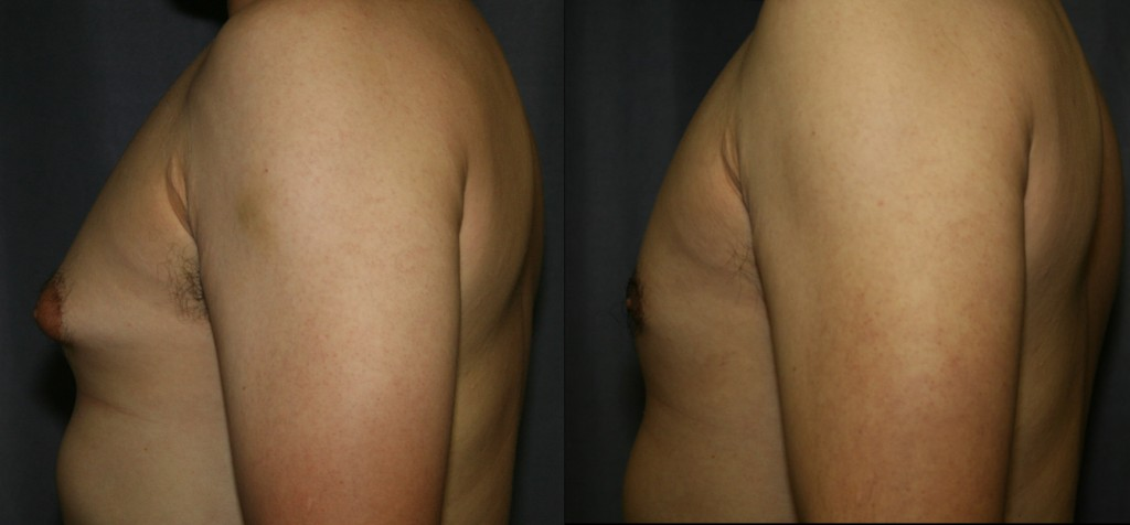 Gynecomastia Before and After Pictures - Firm breast tissue fills the areola and pushes the nipple out causing embarrassment in and out of clothing. Reduction with a combination of Liposuction and precise excision of the tough glandular tissue provides a smooth and more attractive result.