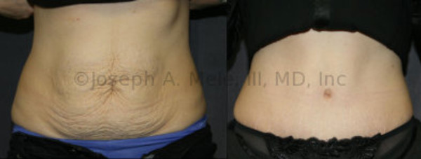 No more Toddler Tummy. Pregnancy stretches the belly. A Tummy Tuck tightens it back up.
