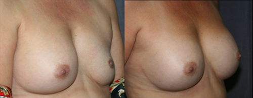 When a breast implant remains deflated for a long time, the skin and the pocket around the implant often shrink. This before and after picture show improved symmetry after breast implant replacement surgery.
