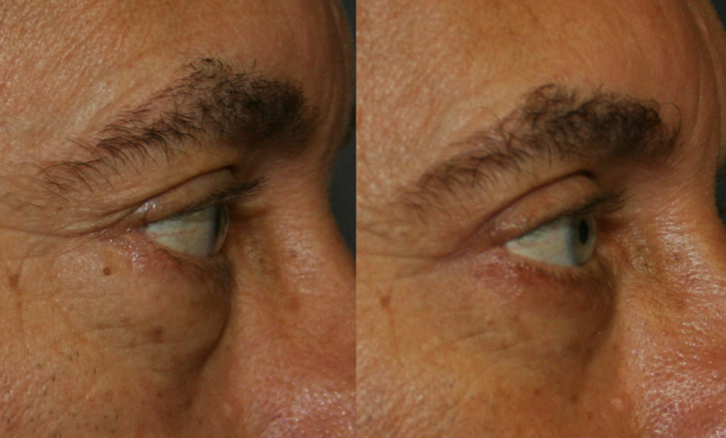 While upper eyelid surgery removes hooding, lower eyelid surgery removes bags. The post-operative appearance is alert and rested and still you.