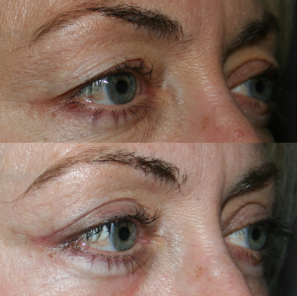 Excess upper eyelid skin gives a tired look. After upper eyelid surgery, the appearance is alert and rested.