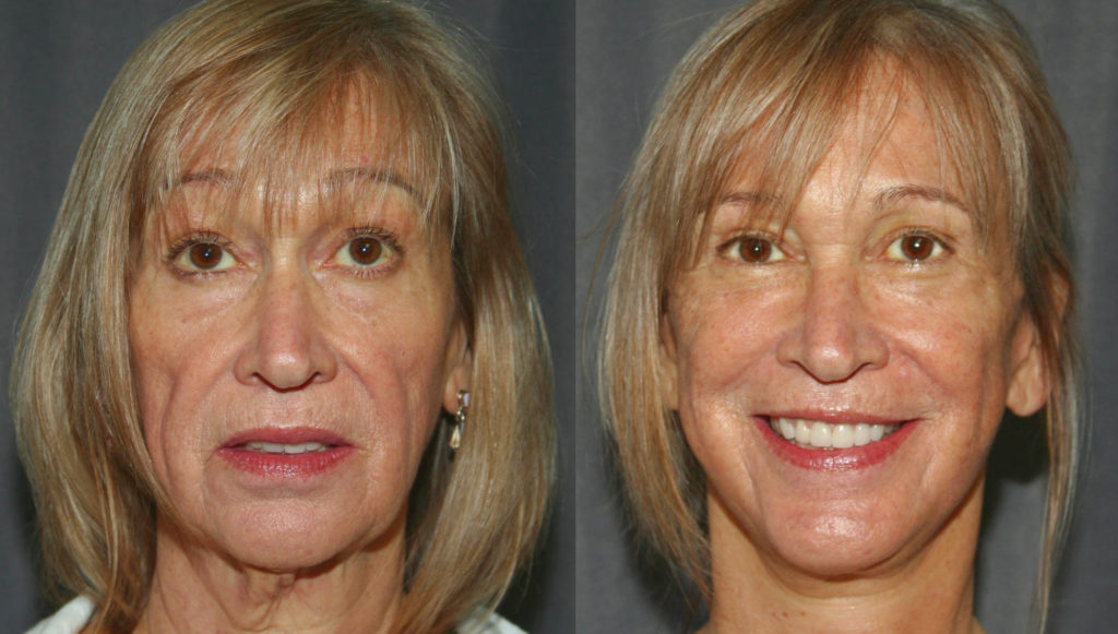 Facelifts can reverse signs of aging and remove lines associated with worry, fatigue and even anger.