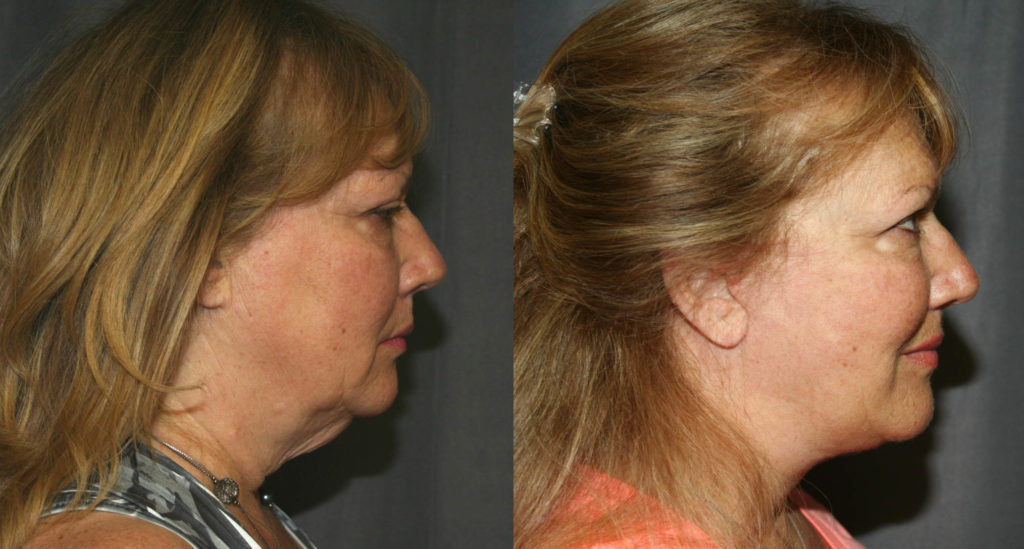 Before and After Neck Lift as seen from the side. Loose skin under the chin is removed and the angle between the neck and chin is improved. Facelifts also improve jowls, clean-up the jawline and reduce the loose skin that accumulates around the mouth and sides of the nose as we age.
