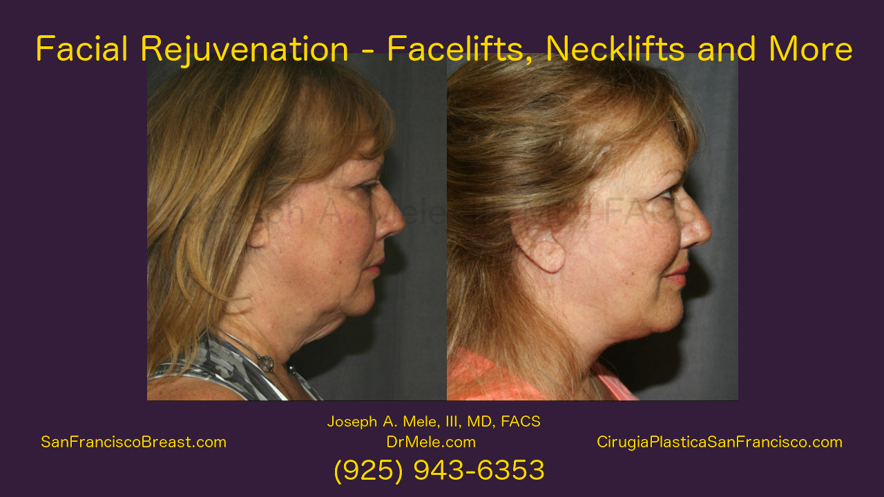 Facelift Video presentation with rhytidectomy before and after images