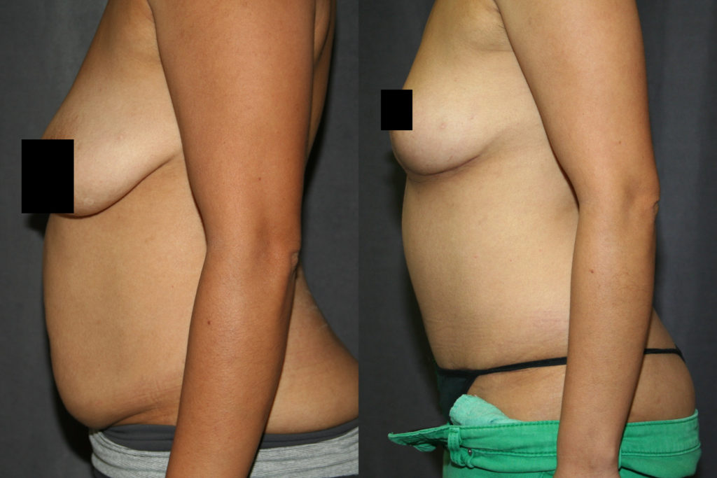 Another Mommy Makeover is the Tummy Tuck and Breast Lift. If you are happy with your breast size, but not the shape, sagging or looseness, a Breast Lift may be all that is needed.