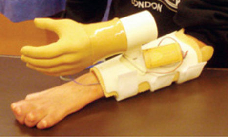 Bionic Hand Training: Marcus's forearm is attached to sensors that pick-up the commands his brain is sending to the transplanted nerves in the forearm. A computer interprets these and translates them into motion of the prosthesis.