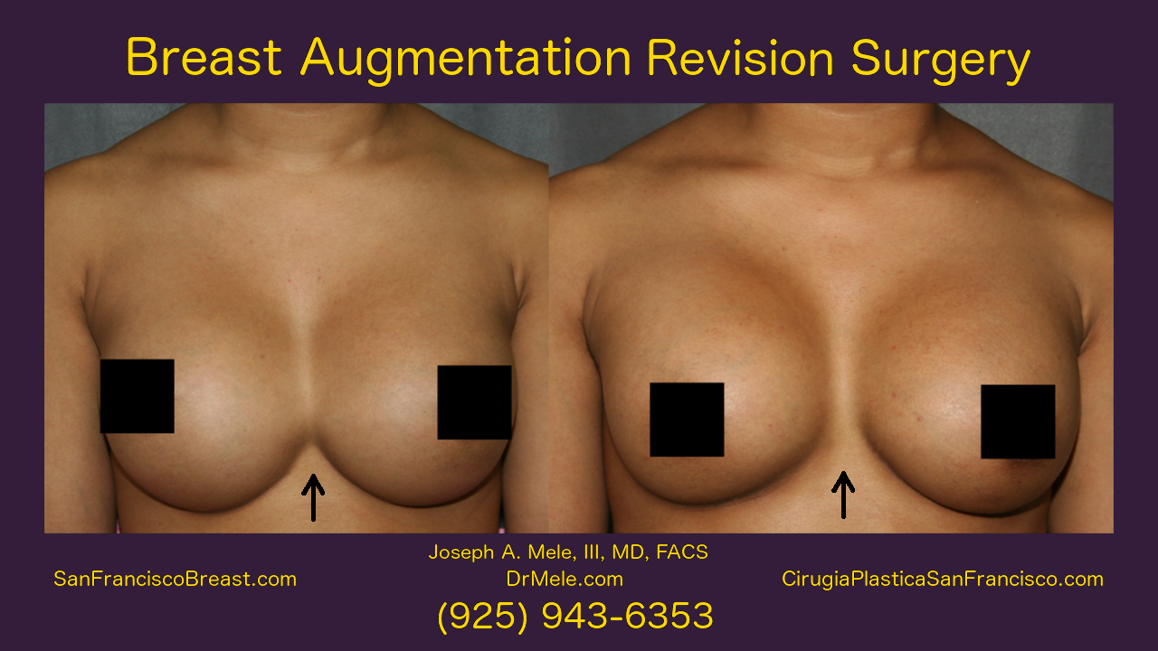 Breast Implant Revision Surgery Video with before and after pictures symmastia