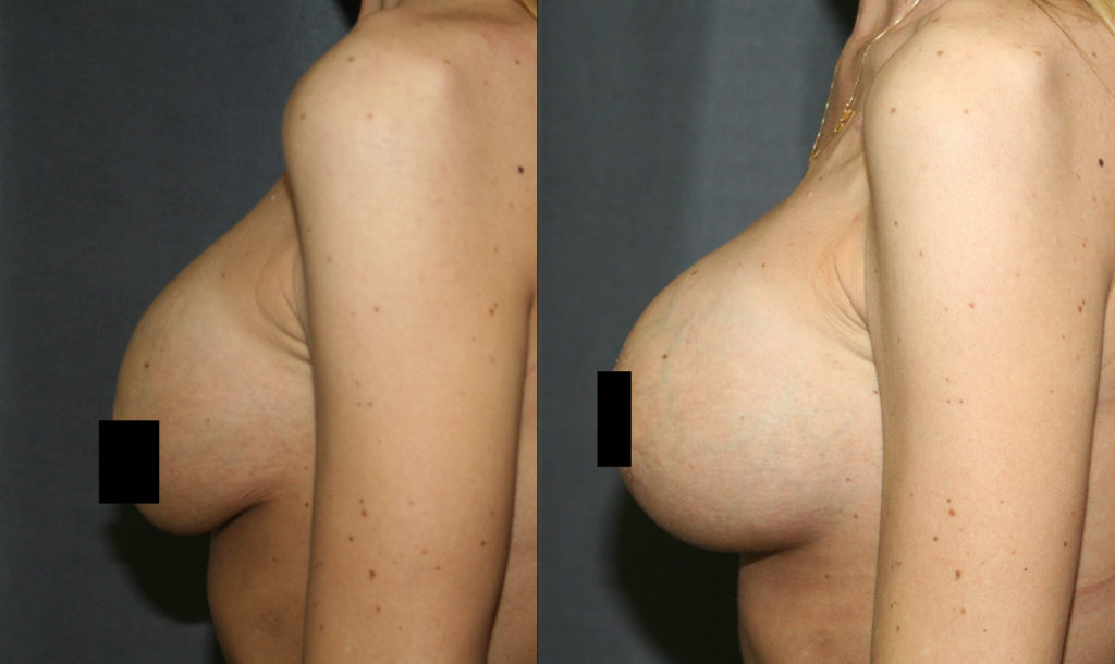 A common reason for Breast Implant Revision is to correct  Capsular Contracture. Before, the  breast implant is firm, squeezed and pushed up out of the breast by a tight capsule, leaving the breast tissue hanging. The after picture shows the improved breast shape and support.