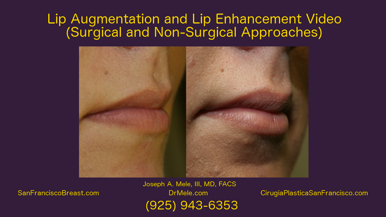 Lip Augmentation Video with lip enhancement before and after pictures