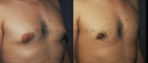 """Breast buds can lead to """"puffy nipples,"""" really the enlargement of the areolae rather than the nipple proper. Gynecomastia reduction surgery can remove the disproportionate breast tissue and masculinize the chest."""
