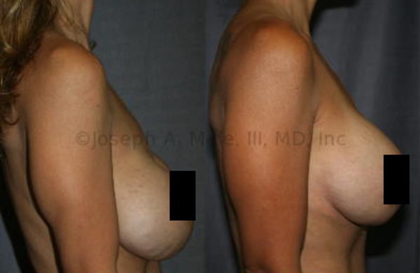 Severe Bottoming-Out: Side view of breast implant revision surgery for severe breast implant inferior malposition and lower pole rippling. Correction was obtained with an internal capsulorrhapy and no addition exterior scars.