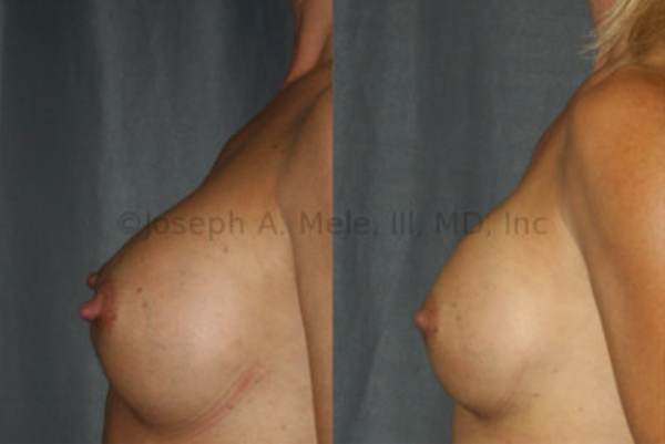 Mild Bottoming Out: Most the volume of the breast implant is below the nipple before the breast implant revision surgery. Note the enhanced fullness above the nipple and the improved angle at the bottom of the breast. Nipple reduction was also performed.