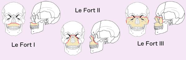 le forte facial fractures
