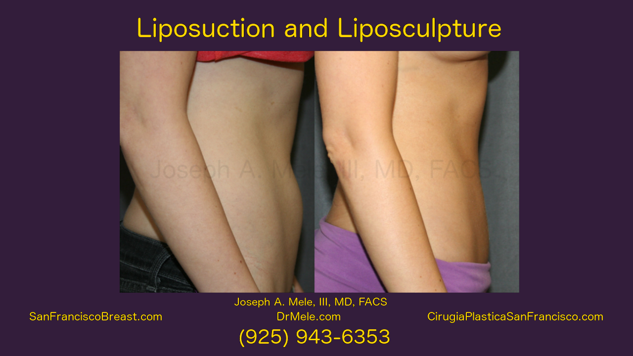Liposuction Video with before and after pictures
