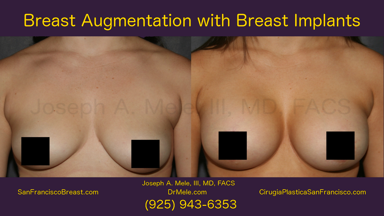 Breast Implants and Breast Augmentation Video with before and after pictures
