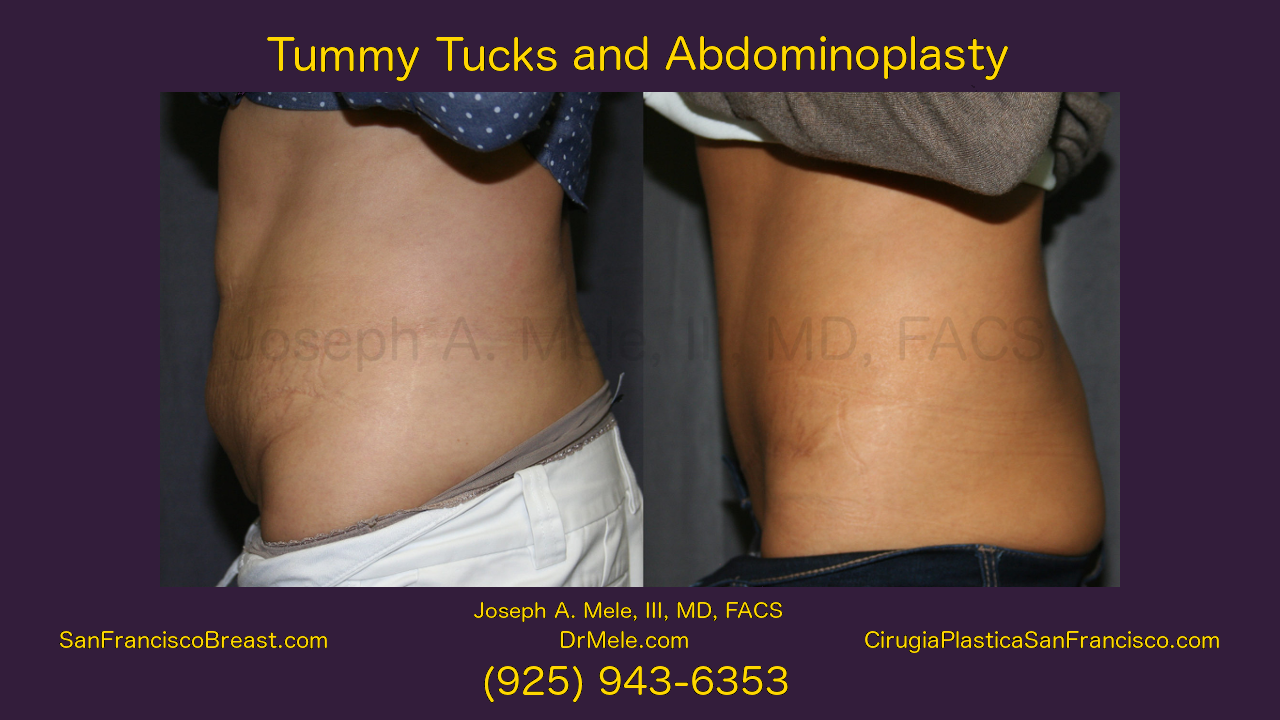 Tummy Tuck Video with Abdominoplasty before and after pictures