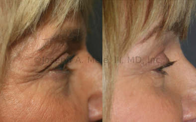 There are four major components that distract from a pretty lower eyelid: bags, wrinkles, lower position and increased height of the lower eyelid. Lower Eyelid Lifts are designed to improve all  these.