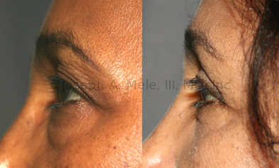 The most frequently used approach for rejuvenating the lower eyelid is the external, subciliary approach. Not only can it remove excess fat like the transconjunctival approach, but it can also tighten the loose skin while lifting and supporting the lower eyelids.