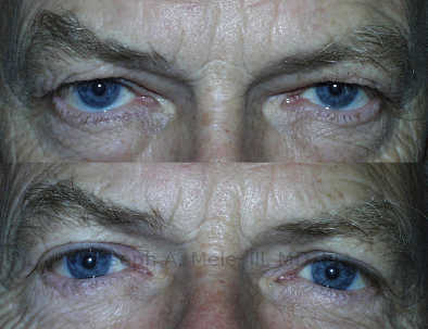 Before upper blepharoplasty and levator advancement (muscle tightening), ptosis (sagging) of the upper eyelids is blocking the patient's vision. He underwent reconstructive plastic surgery to tighten the muscles that elevate the eyelid and raise the upper eyelid's edge above the pupils.