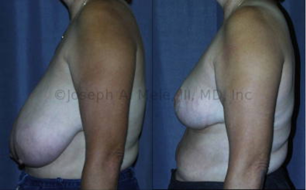 Breast Reduction Before and After Pictures illustrating the typical goals of reduced size and lifted breasts.