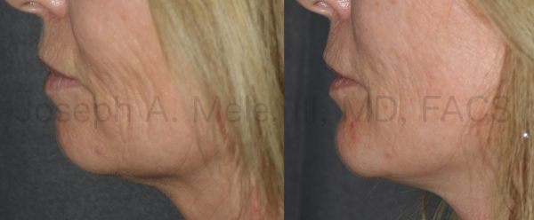 Chin Augmentation can be combined with neck and face lifts to correct a small chin and enhance the jawline.