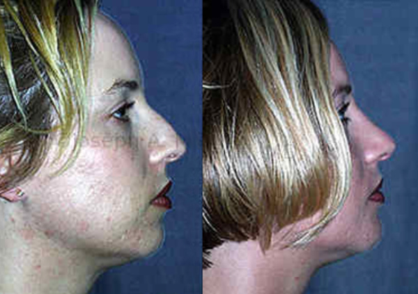 Chin Augmentation can provide proportion to the profile and balance a nose that is too large for the chin.