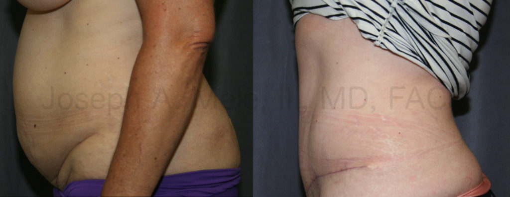 Abdominoplasty tightens the lower abdomen and may also improve stress urinary incontinence.