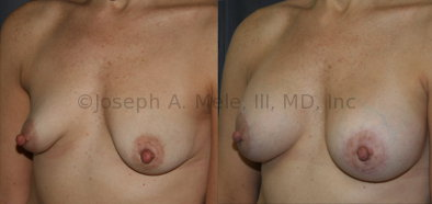 Breast Augmentation with a Periareolar Lift Before and After Pictures: Periareolar lifts are often used to both lift the nipple and to reshape tubular breasts during breast augmentation.