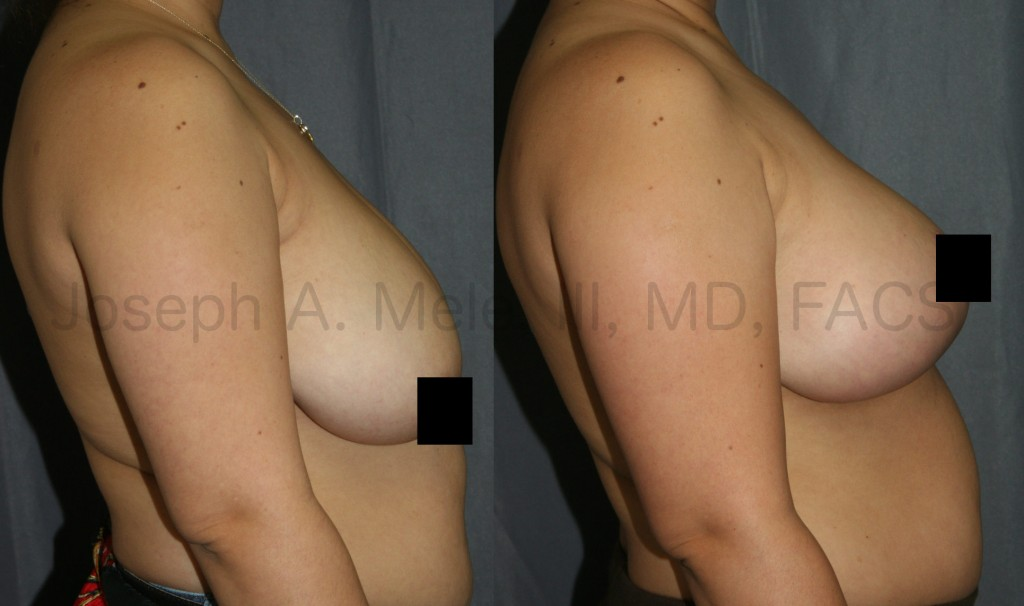 Breast lift before and after pictures show lifting of the nipple and breast tissue from the side. This makes the breasts perky and youthful.