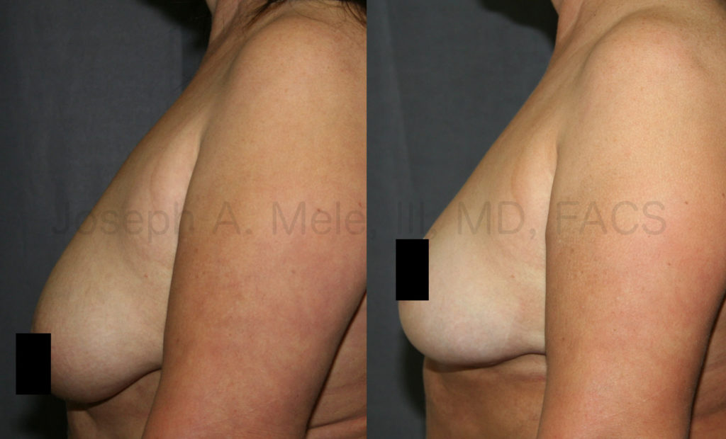 Inverted-T or Anchor Breast Lift Before and After Pictures: This type of lift allows for maximum rejuvenation. Tired old looking breast become youthful and perky. The IMF incision is hidden in the fold under the breast. Out of site. Out of mind.