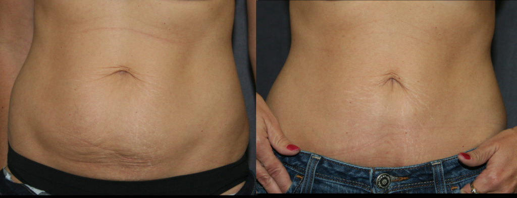 When there is less tummy to tighten, the Mini Abdominoplasty or Mini Tummy Tuck can give great results with a shortened recovery.
