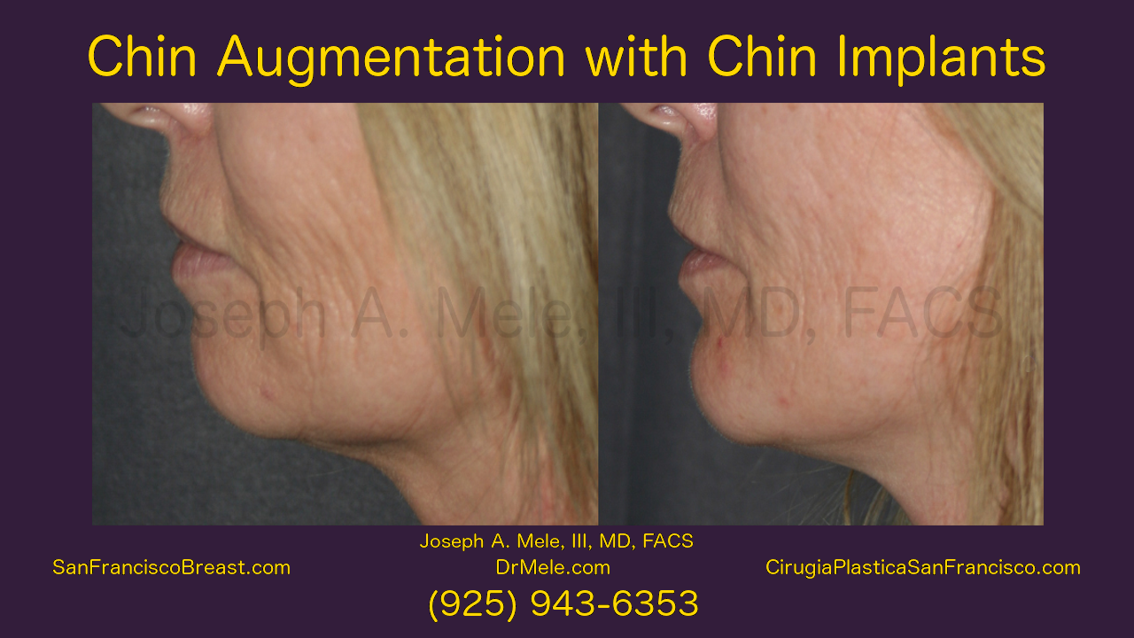 Chin Augmentation Video with chin implant before and after pictures