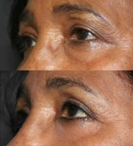 After blepharoplasty, the upper eyelid crease is singular and  more defined, while the lower eyelid bags have been removed.
