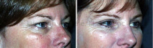 Before blepharoplasty, the excess upper eyelid skin is resting on the eyelashes, making eye makeup impossible to maintain.Before blepharoplasty, the excess upper eyelid skin is resting on the eyelashes, making eye makeup impossible to maintain.