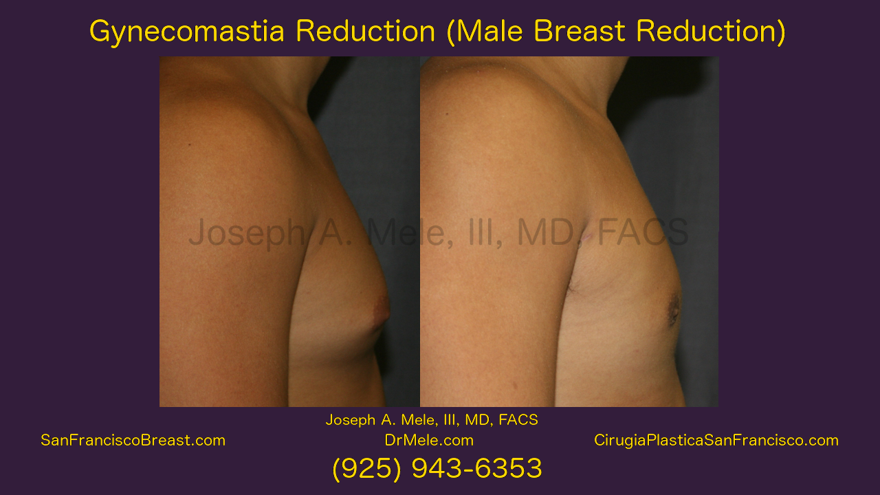 Gynecomastia Reduction Video with male breast reduction before and after pictures