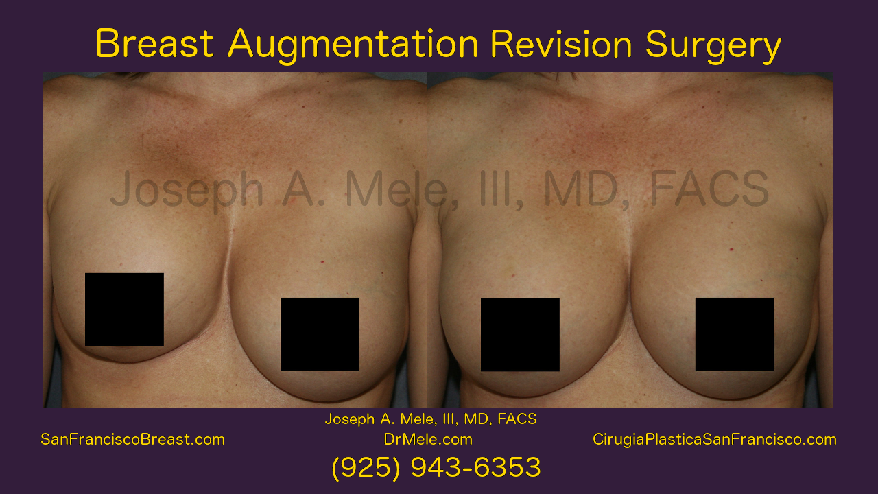 Breast Augmentation Revision Surgery Video with before and after pictures
