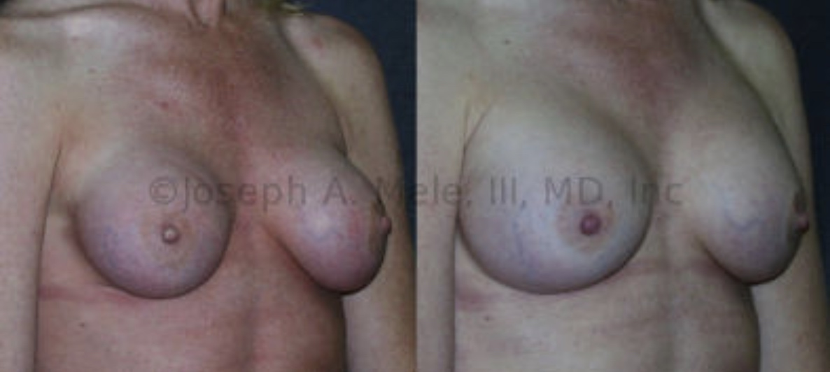 Capsular Contracture results in a compressed breast implant that looks, smaller, feels harder and in the worst case scenario hurts. A capsulectomy and breast implant exchange was performed to provide this patient with softer, larger, painless breasts that look and feel better.