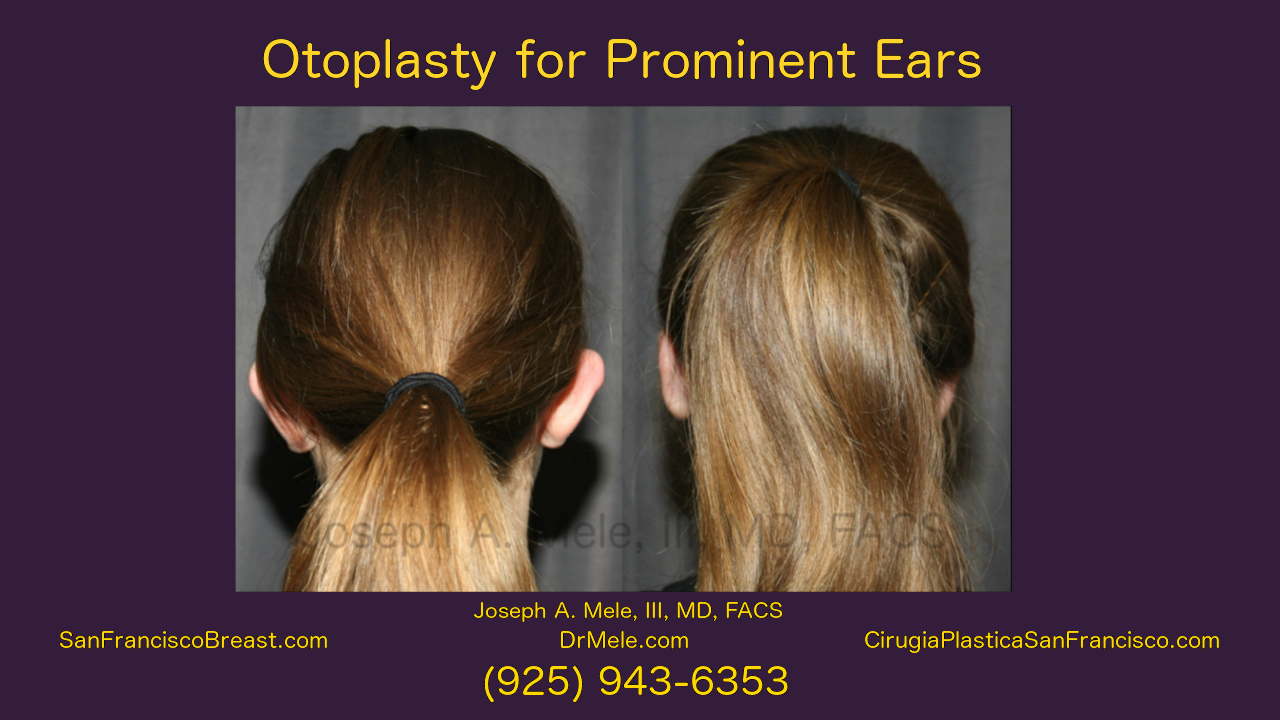 Otoplasty Video with Ear Pinning before and after pictures for prominent ears