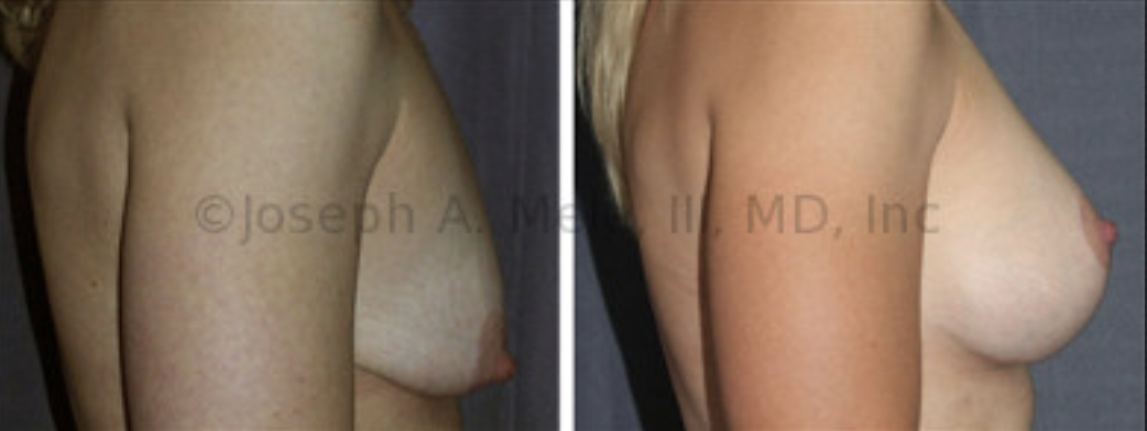 The Breast Augmentation Mastopexy before and after pictures above show what is possible when Breast Implants are used with a Breast Lift. Correction of both size and shape is possible.