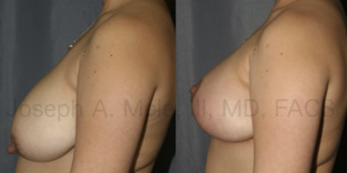 When the breast volume is good, but the breast needs a lift, Breast Lifts can help. The Breast Lift (Mastopexy) before and after pictures above show how the breast can be reshaped without adding volume.