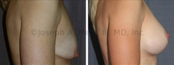 Breast Enhancement is half of the Mommy Makeover. In this case, a Breast Augmentation Mastopexy  is performed. A Breast Implant is used to increase the breast volume, while a Breast Lift is used to raise the nipple and reshape the breast. A larger implant without a lift would not make a pretty breast. A larger implant would make larger breasts,  too large for this patient's desires. Additionally, the larger implant would push the nipple lower on the breast.