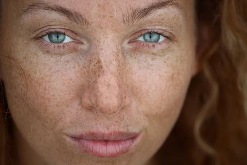Freckles are sun damage. Without sun exposure, freckles never appear.