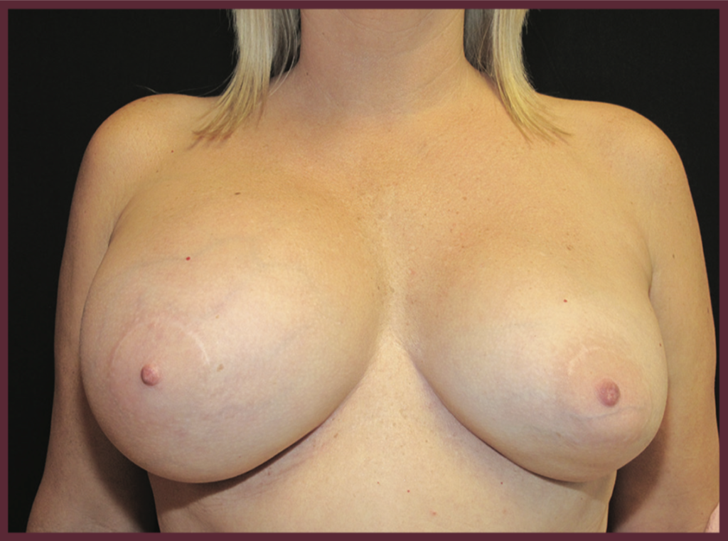 The typical presentation of ALCL is a large seroma (fluid collection) around the breast implant causing obvious enlargement and asymmetry of the breast augmentation.