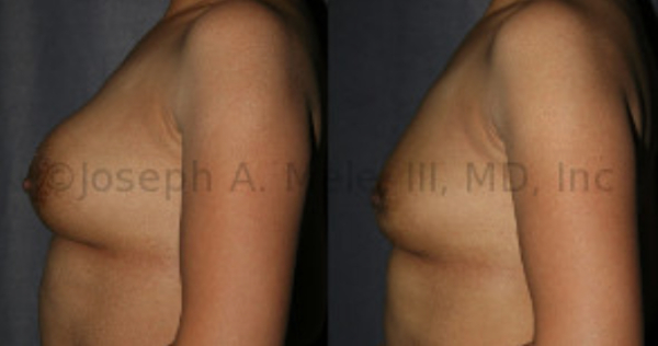 Breast Implant Removal Before And After Photos: One option is to have the breast implants removed and not replaced. Another is to replace your PIP breast implants with FDA approved breast implants, the later options will also preserve the size of your breast. Be certain to ask your Board Certified Plastic Surgeon about your options for treatment.